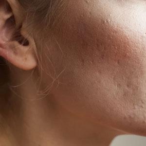 a pele com manchas da acne